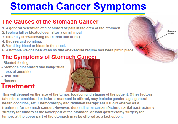 Stomach Cancer Symptoms Pic